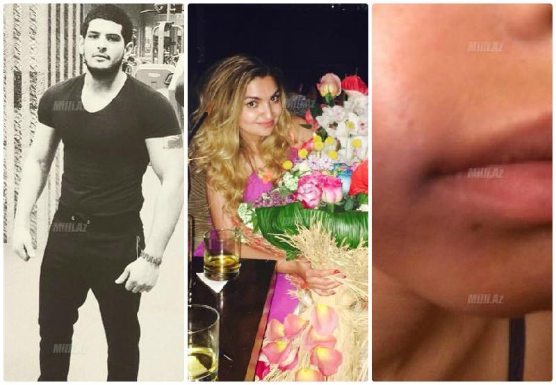 Подруга девушки, избитой спортсменом в караоке-клубе в Баку, обнародовала новые факты об Исе Азизове - ФОТО – ОБНОВЛЕНО