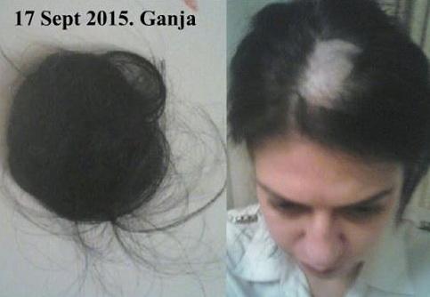 Что делать если выдрали клок волос