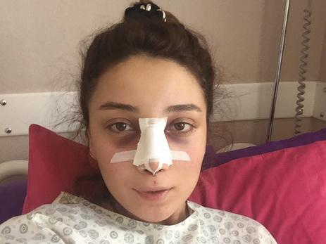 Пластическая операция носа во владимире
