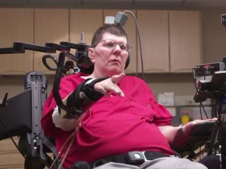 Новые технологии позволили парализованному жителю америки двигать рукой силой мысли