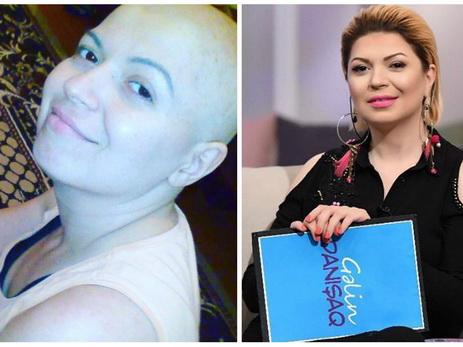 Актриса Зюмрюд Гасымова, победившая рак: «Мне хотелось перемотать мою жизнь, словно пленку …» - ФОТО – ВИДЕО