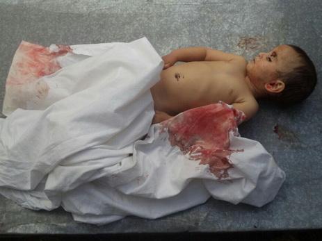 UNICEF прокомментировал убийство армянами малолетней Захры Гулиевой