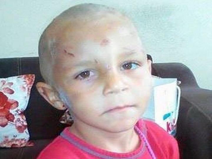 В Баку родители жестоко избивали четырехлетнего ребенка, требуя попрошайничать – ФОТО